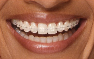 Orthodontie sans bague