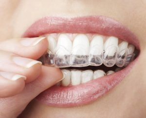orthodontie adulte appareil de contention gouttière invisible Invisalign Paris