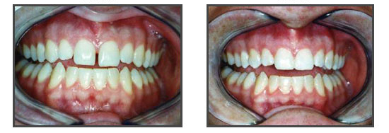 orthodontie diasteme