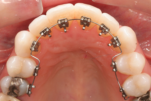 Appareil Dentaire Adulte Bagues Lingual Invisible Orthodontie