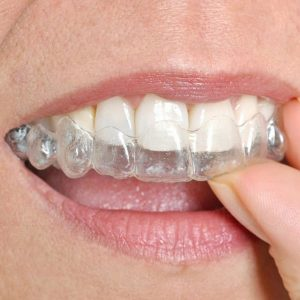 orthodontie adulte gouttière invisalign