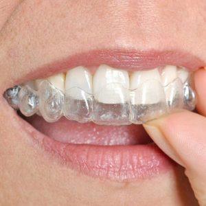 orthodontie adulte gouttière invisalign