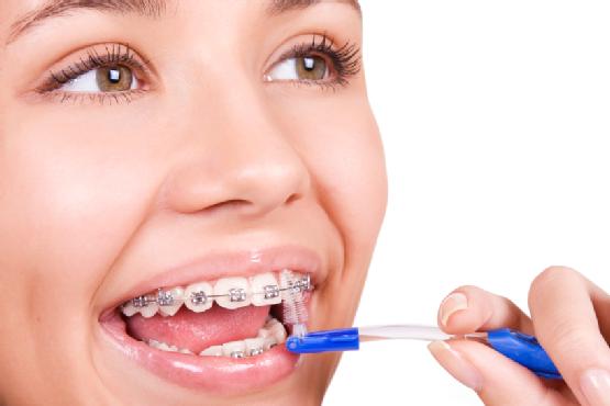 brosse inter dentaire