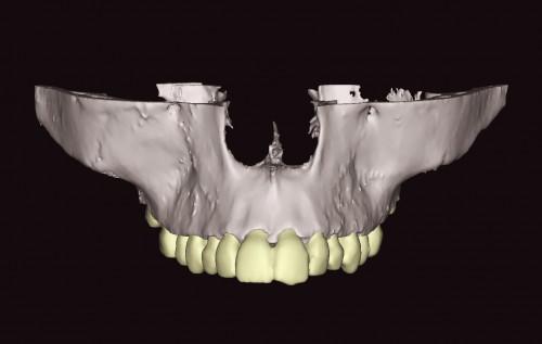 cone beam dentaire