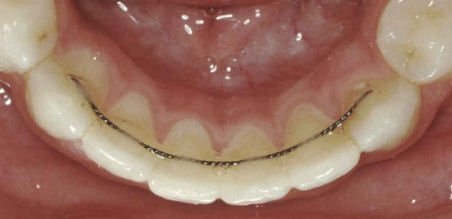 appareil-de-contention-fixe orthodontie