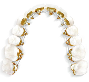 bague or orthodontie linguale