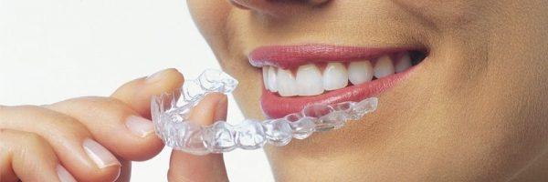 Appareil dentaire Invisalign
