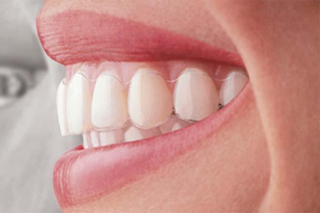 Gouttière Invisalign appareil dentaire transparent