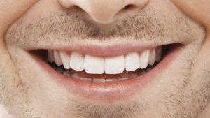 Orthodontie adulte : rajeunir votre sourire c'est encore possible