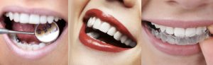 Tout sur l'orthodontie adulte