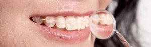 Retrouvez votre sourire avec le Dr Michel Cassagne orthodontiste adulte